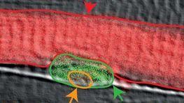 Phagocytes Repair Muscle Fibers
